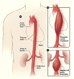 Abdominal aortic aneurysm (AAA) screening
